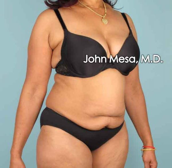 Tummy Tuck (Brazilian Tummy Tuck) Gallery - Patient 6371505 - Image 5