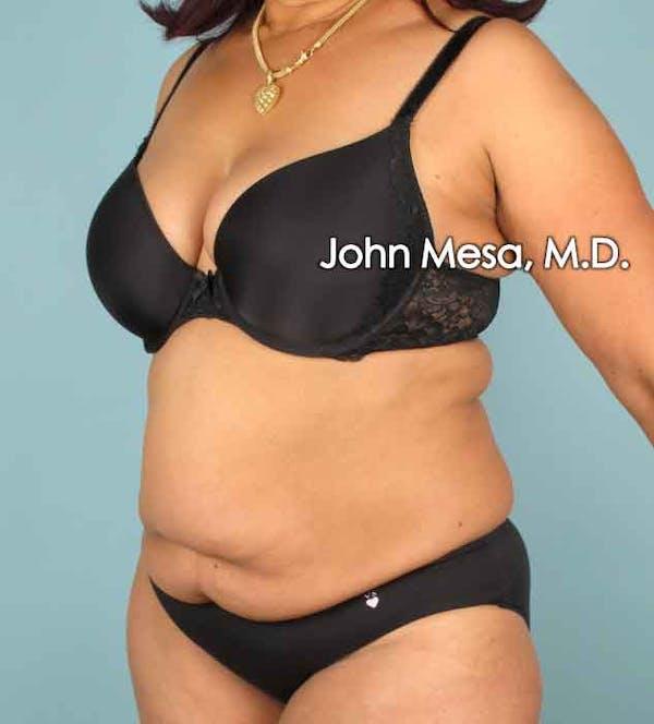 Tummy Tuck (Brazilian Tummy Tuck) Gallery - Patient 6371505 - Image 7