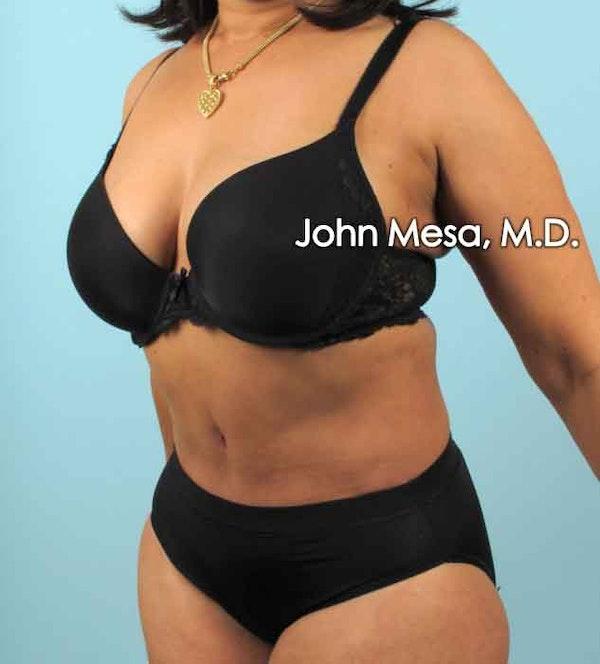 Tummy Tuck (Brazilian Tummy Tuck) Gallery - Patient 6371505 - Image 8