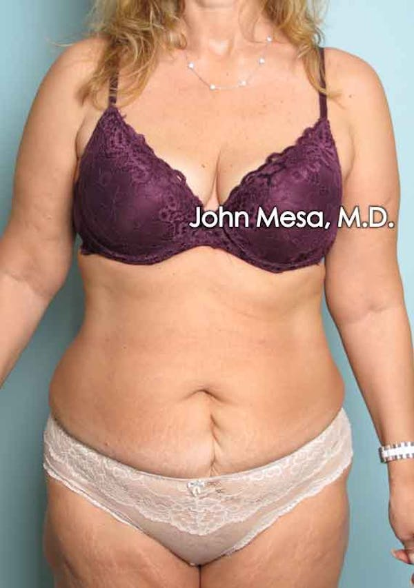 Tummy Tuck (Brazilian Tummy Tuck) Gallery - Patient 6371506 - Image 1