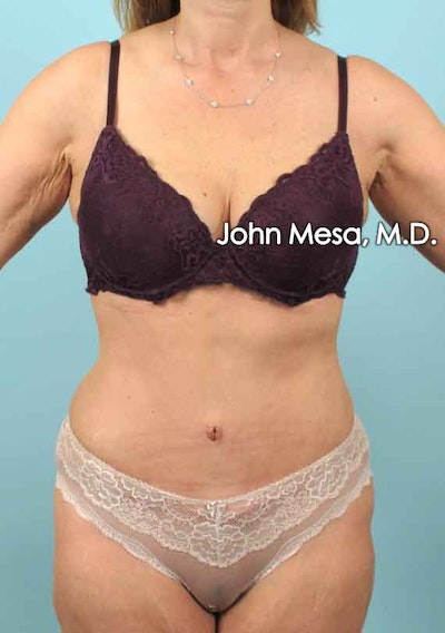 Tummy Tuck (Brazilian Tummy Tuck) Gallery - Patient 6371506 - Image 2