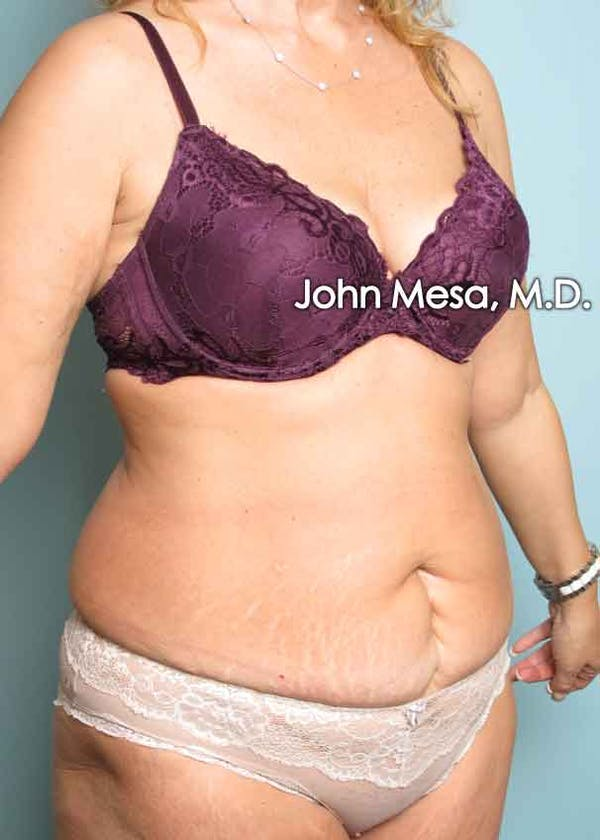 Tummy Tuck (Brazilian Tummy Tuck) Gallery - Patient 6371506 - Image 3