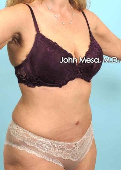 Tummy Tuck (Brazilian Tummy Tuck) Gallery - Patient 6371506 - Image 4