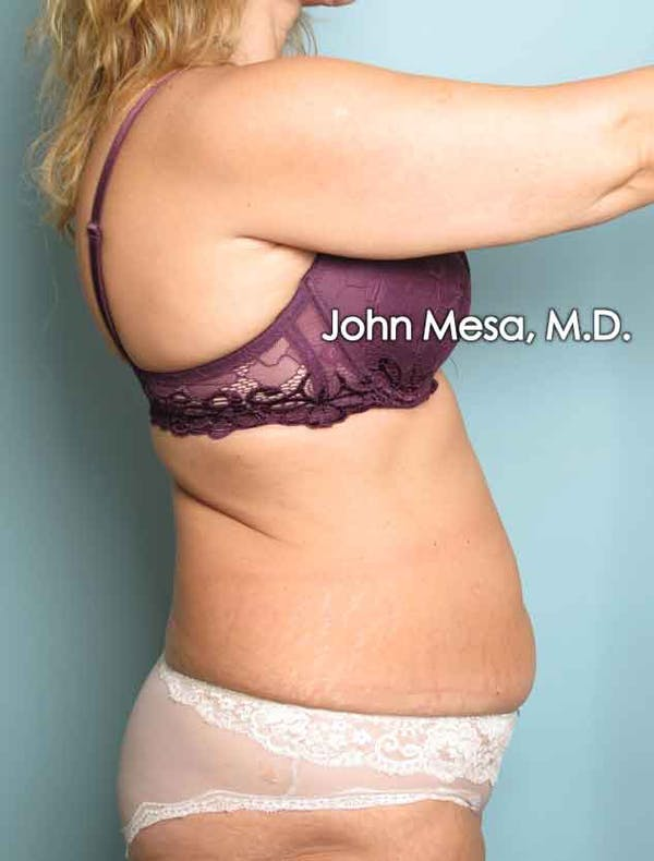 Tummy Tuck (Brazilian Tummy Tuck) Gallery - Patient 6371506 - Image 5