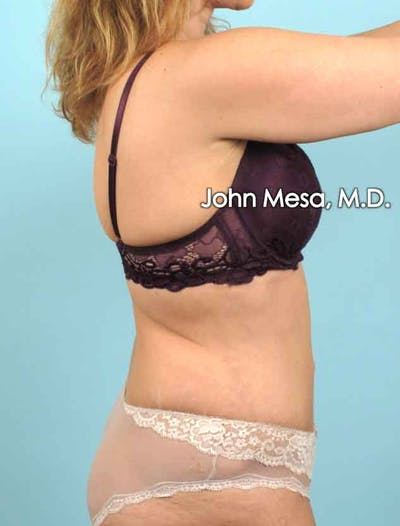Tummy Tuck (Brazilian Tummy Tuck) Gallery - Patient 6371506 - Image 6