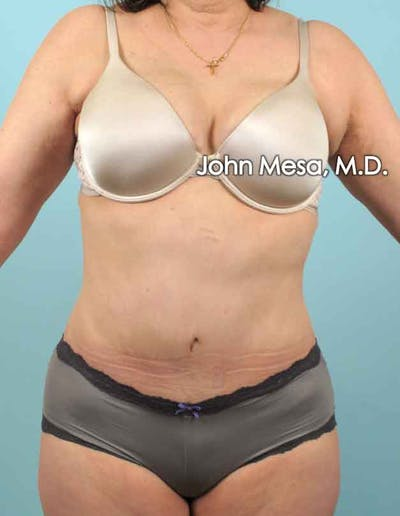 Tummy Tuck (Brazilian Tummy Tuck) Gallery - Patient 6371508 - Image 2