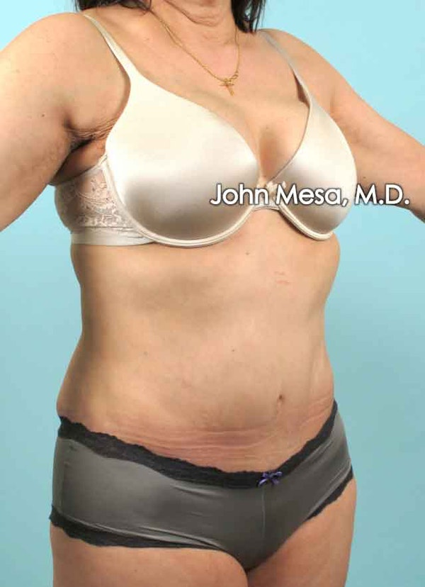 Tummy Tuck (Brazilian Tummy Tuck) Gallery - Patient 6371508 - Image 4