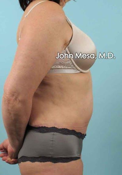 Tummy Tuck (Brazilian Tummy Tuck) Gallery - Patient 6371508 - Image 6