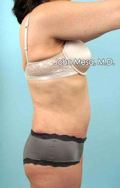 Tummy Tuck (Brazilian Tummy Tuck) Gallery - Patient 6371508 - Image 8