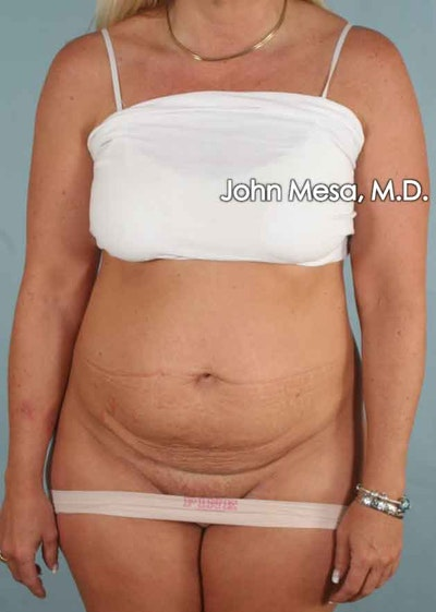 Tummy Tuck (Brazilian Tummy Tuck) Gallery - Patient 6371510 - Image 1