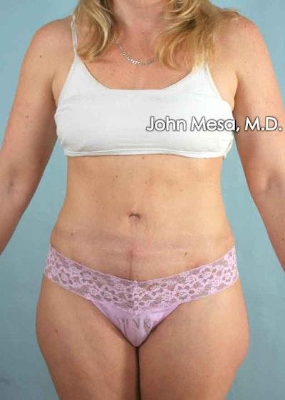 Tummy Tuck (Brazilian Tummy Tuck) Gallery - Patient 6371510 - Image 2