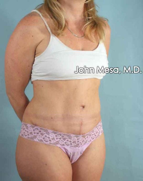 Tummy Tuck (Brazilian Tummy Tuck) Gallery - Patient 6371510 - Image 4