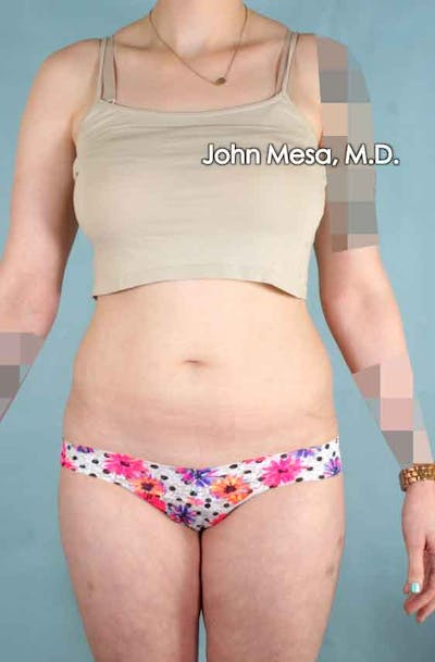 Liposuction Gallery - Patient 6371511 - Image 1