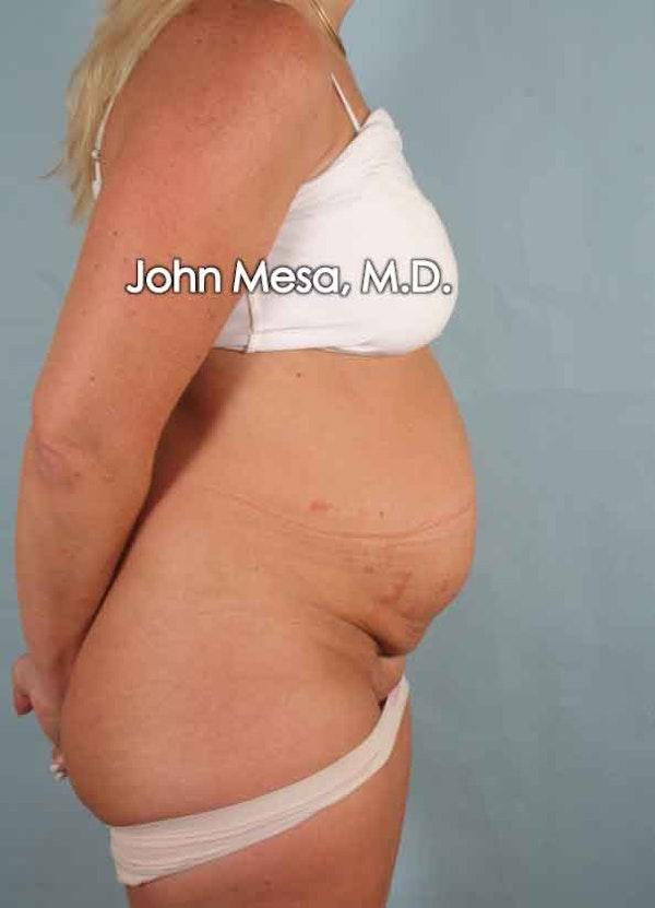 Tummy Tuck (Brazilian Tummy Tuck) Gallery - Patient 6371510 - Image 5