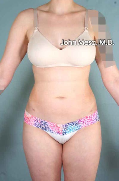 Liposuction Gallery - Patient 6371511 - Image 2