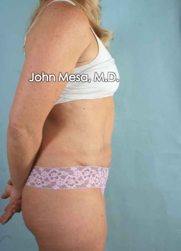 Tummy Tuck (Brazilian Tummy Tuck) Gallery - Patient 6371510 - Image 6