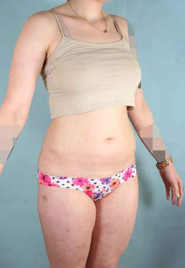 Liposuction Gallery - Patient 6371511 - Image 3