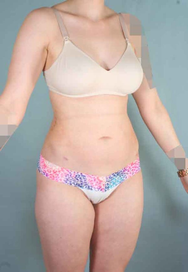 Liposuction Gallery - Patient 6371511 - Image 4