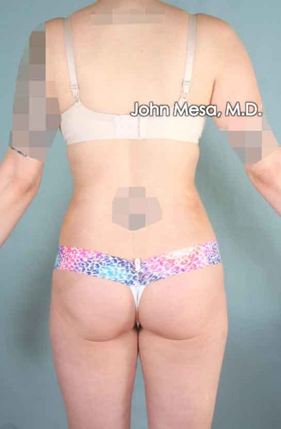 Liposuction Gallery - Patient 6371511 - Image 6
