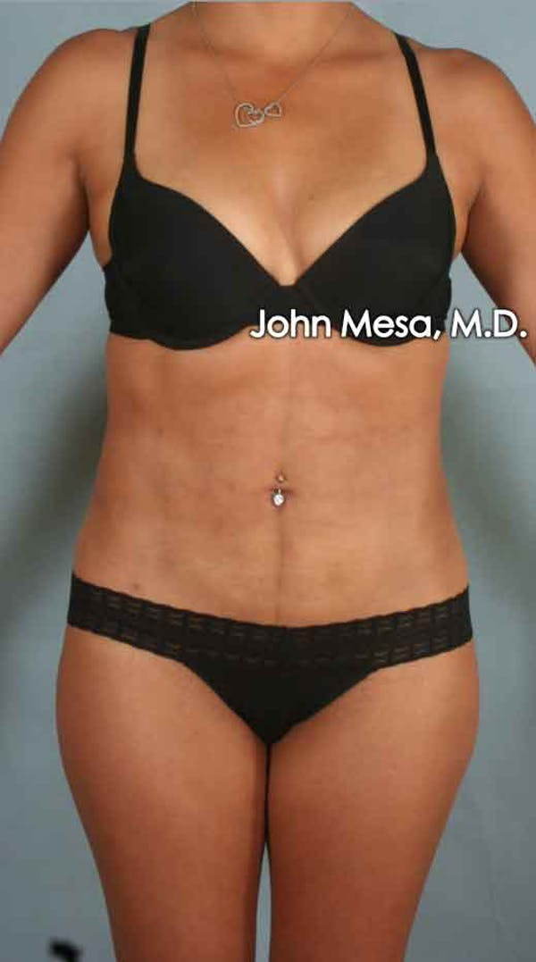 Liposuction Gallery - Patient 6371517 - Image 2