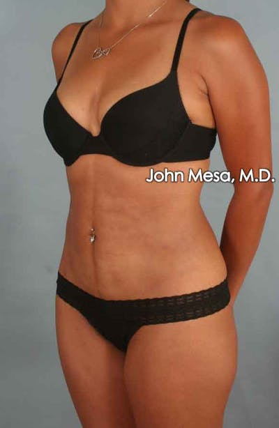 Liposuction Gallery - Patient 6371517 - Image 4