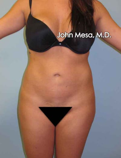 Liposuction Gallery - Patient 6371518 - Image 3