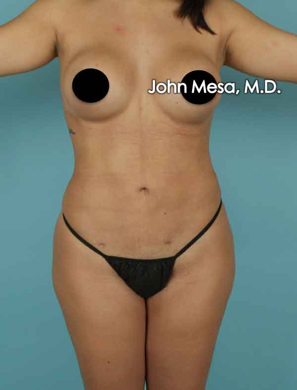 Liposuction Gallery - Patient 6371518 - Image 2