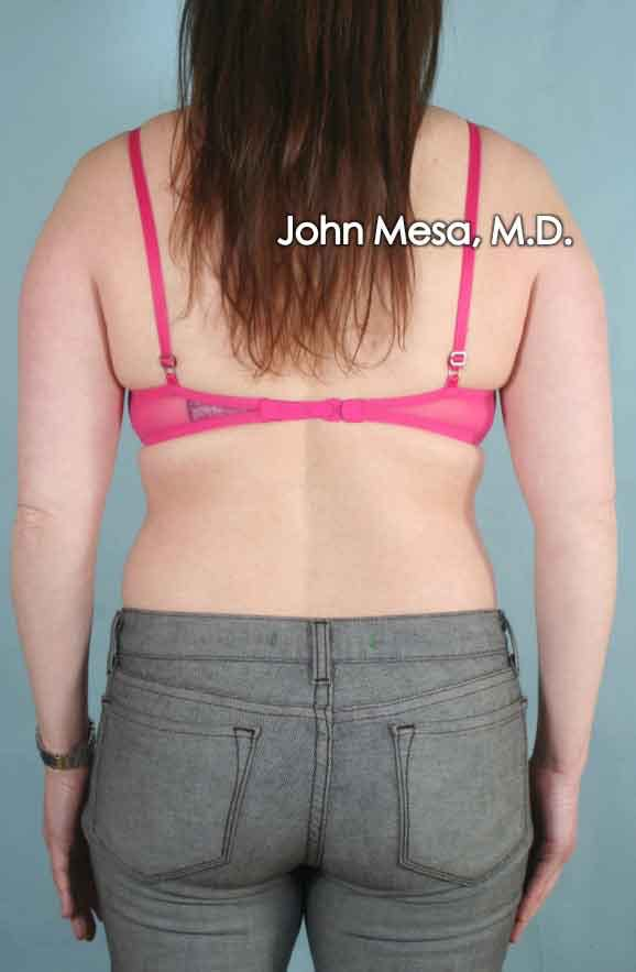 Liposuction Gallery - Patient 6371522 - Image 1