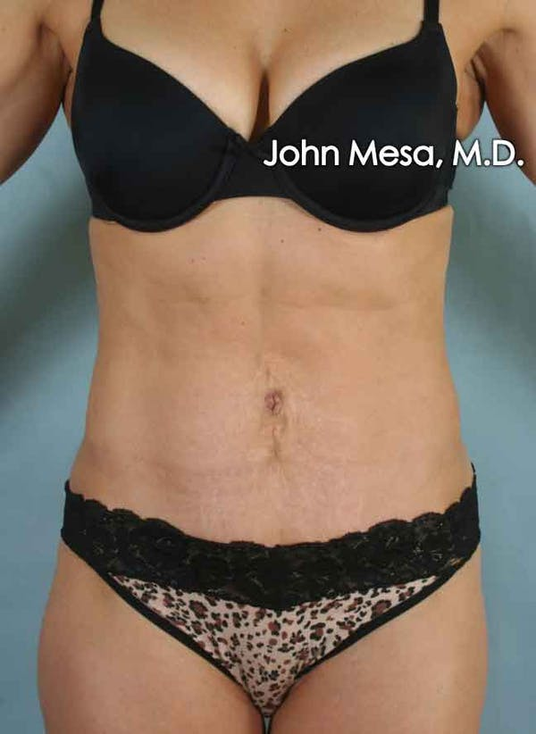 Panniculectomy Gallery - Patient 6371520 - Image 6