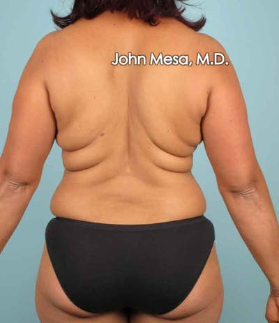 Liposuction Gallery - Patient 6371523 - Image 5