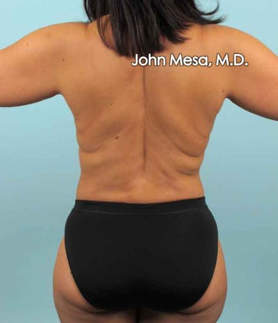 Liposuction Gallery - Patient 6371523 - Image 2