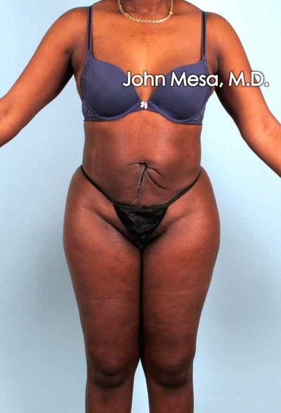 Liposuction Gallery - Patient 6371524 - Image 2