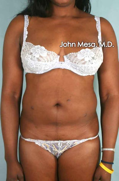 Liposuction Gallery - Patient 6371525 - Image 7