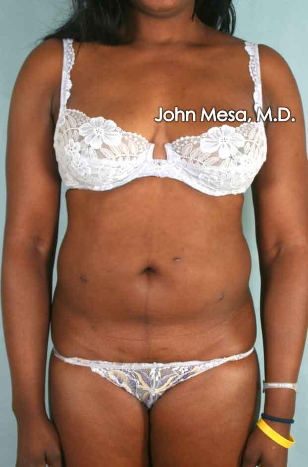 Liposuction Gallery - Patient 6371525 - Image 1