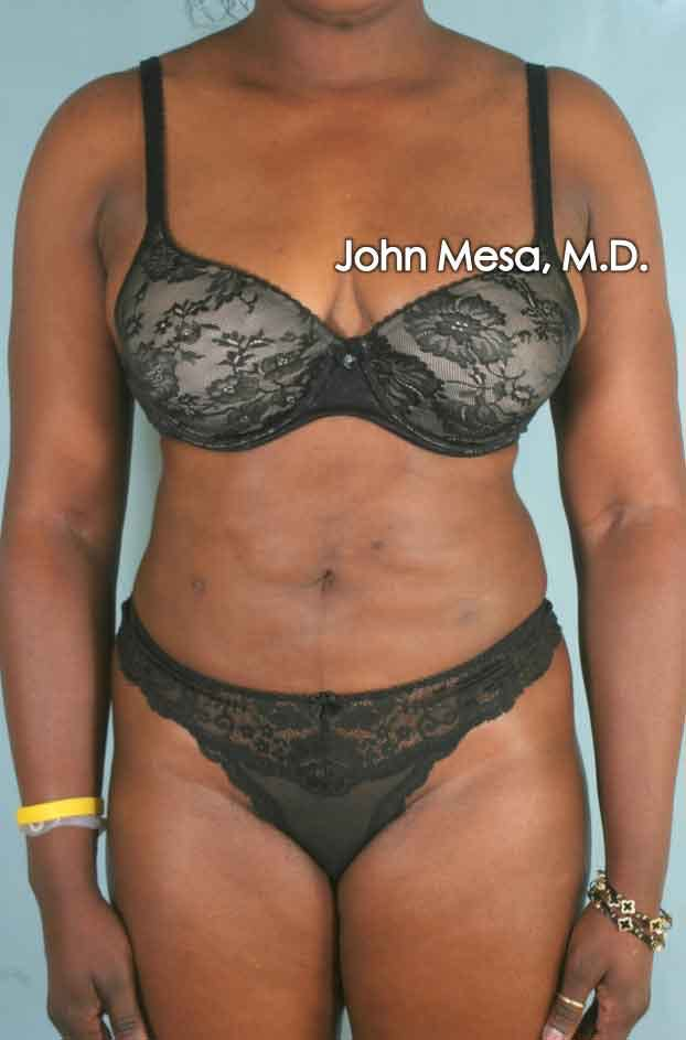 Liposuction Gallery - Patient 6371525 - Image 2