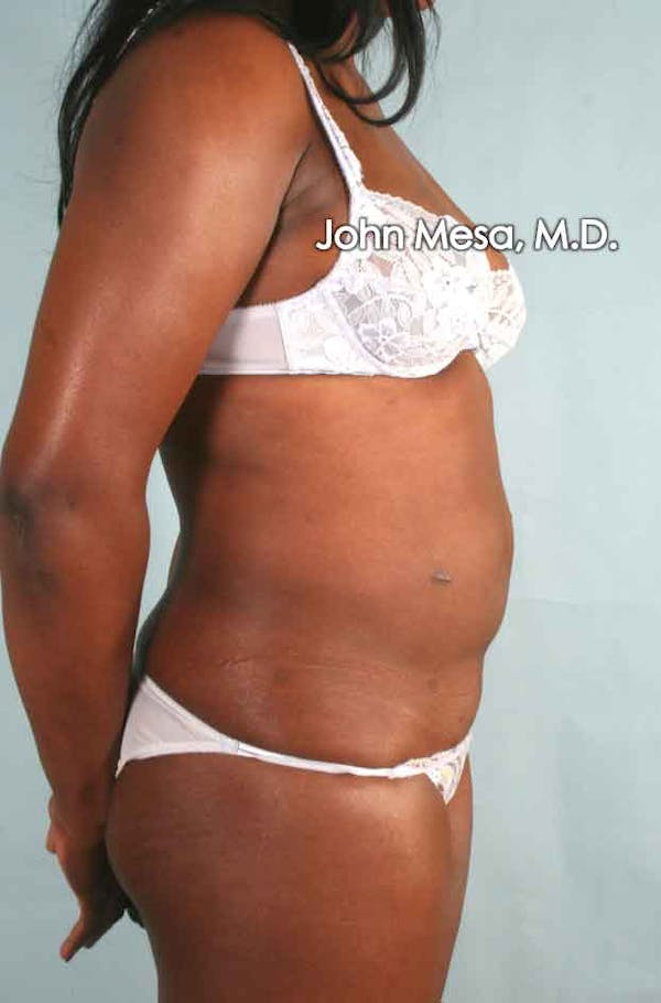 Liposuction Gallery - Patient 6371525 - Image 3