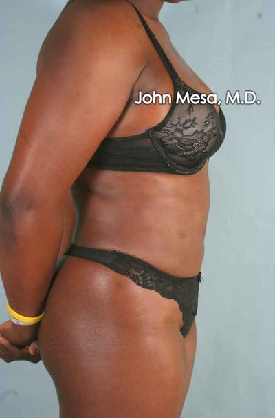 Liposuction Gallery - Patient 6371525 - Image 4
