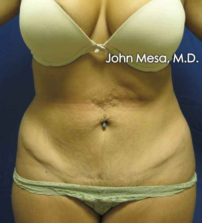 Tummy Tuck Revision Gallery - Patient 6371536 - Image 1