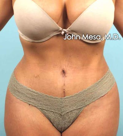 Tummy Tuck Revision Gallery - Patient 6371536 - Image 2