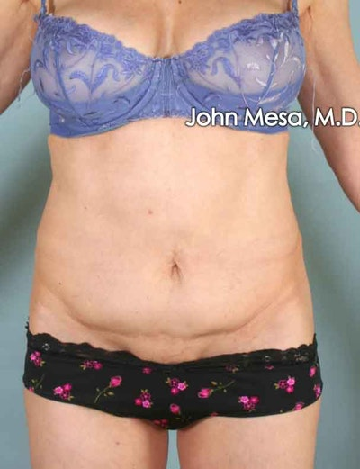 Tummy Tuck Revision Gallery - Patient 6371538 - Image 1