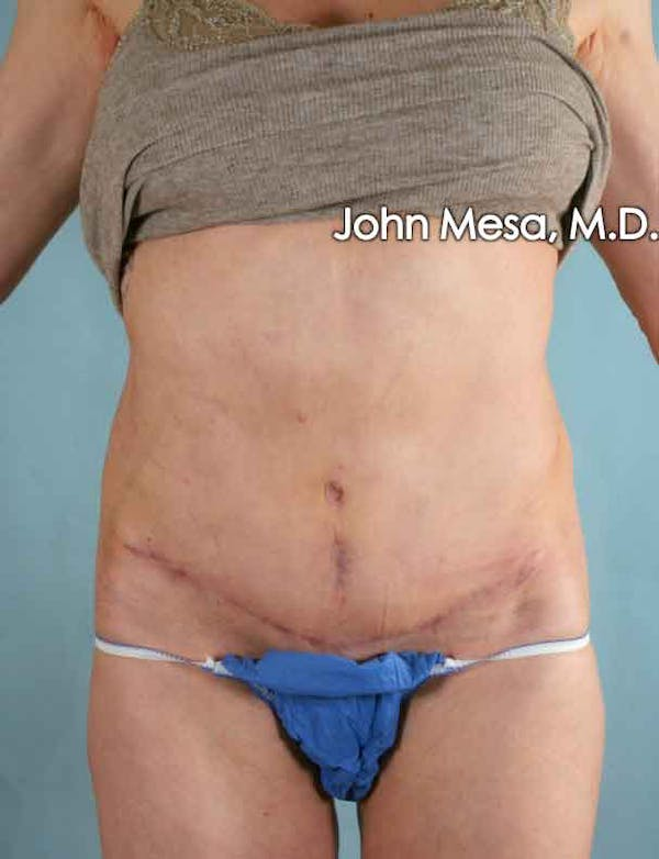 Tummy Tuck Revision Gallery - Patient 6371538 - Image 2