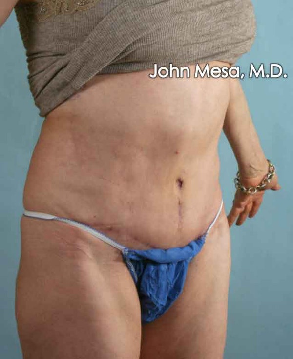 Tummy Tuck Revision Gallery - Patient 6371538 - Image 4