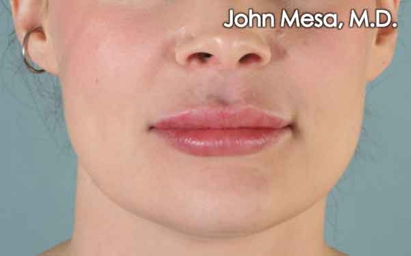 Lip Augmentation (Injectables) Gallery - Patient 6371540 - Image 2