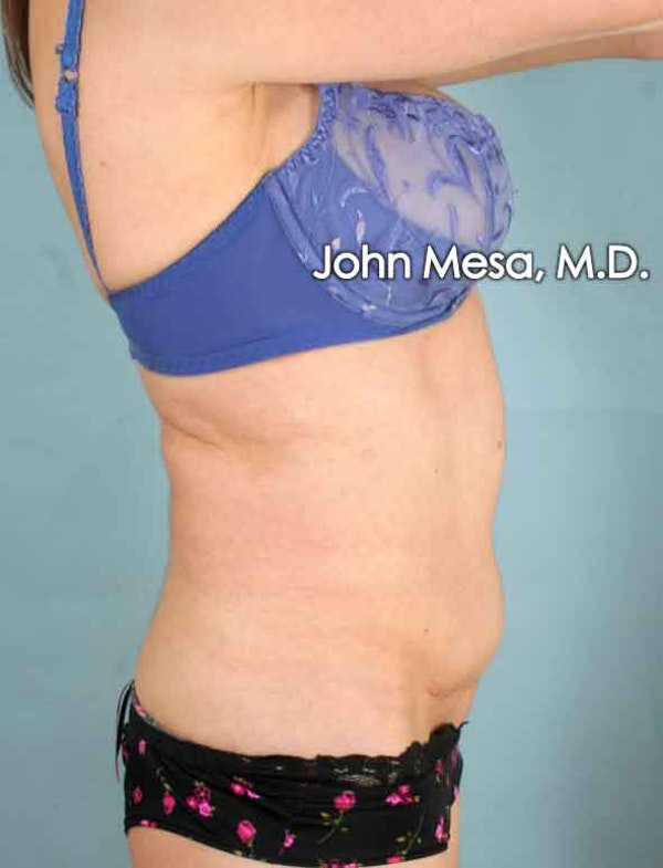 Tummy Tuck Revision Gallery - Patient 6371538 - Image 5