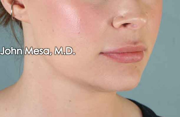 Lip Augmentation (Injectables) Gallery - Patient 6371540 - Image 3