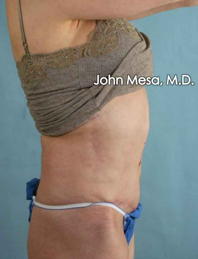 Tummy Tuck Revision Gallery - Patient 6371538 - Image 6