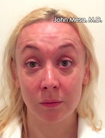 Botox Gallery - Patient 6371562 - Image 1