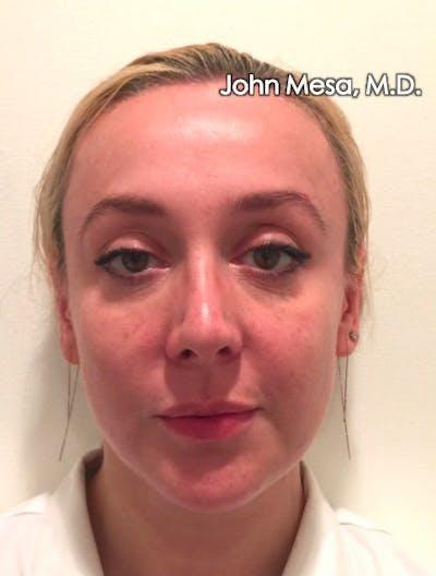 Botox Gallery - Patient 6371562 - Image 2