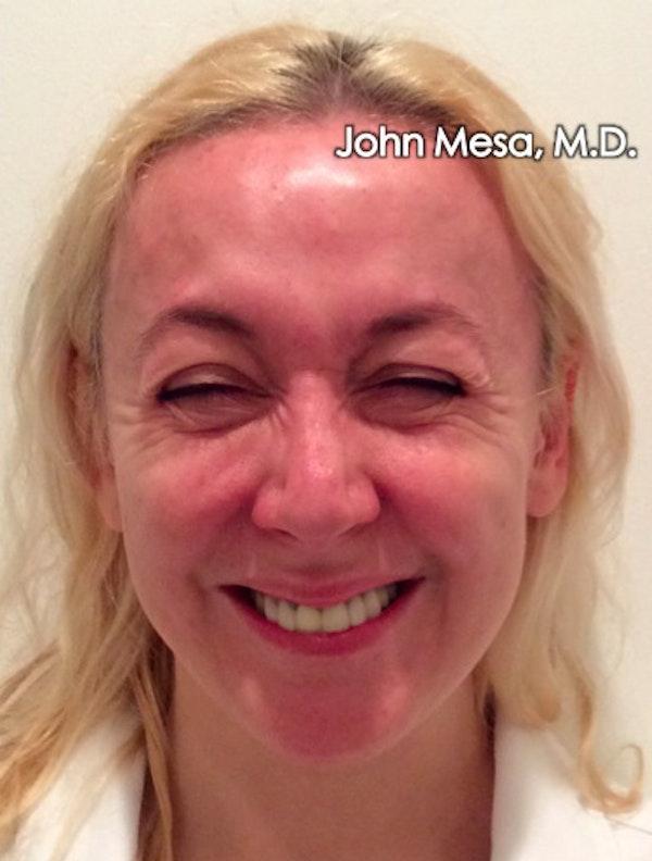 Botox Gallery - Patient 6371562 - Image 3