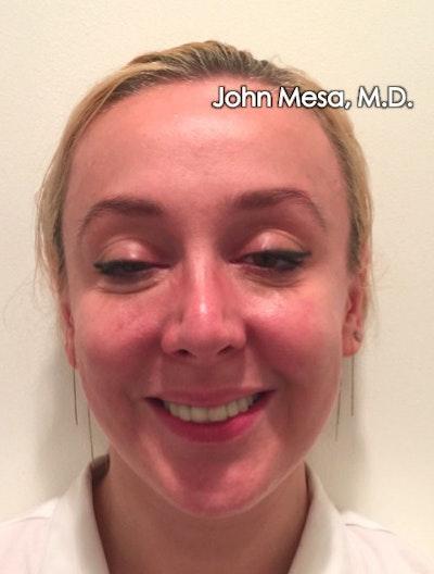 Botox Gallery - Patient 6371562 - Image 4